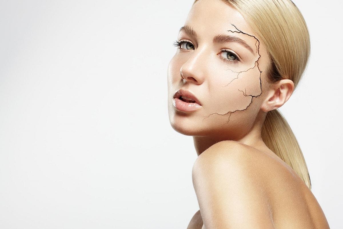 Kvinde med meget tør hud