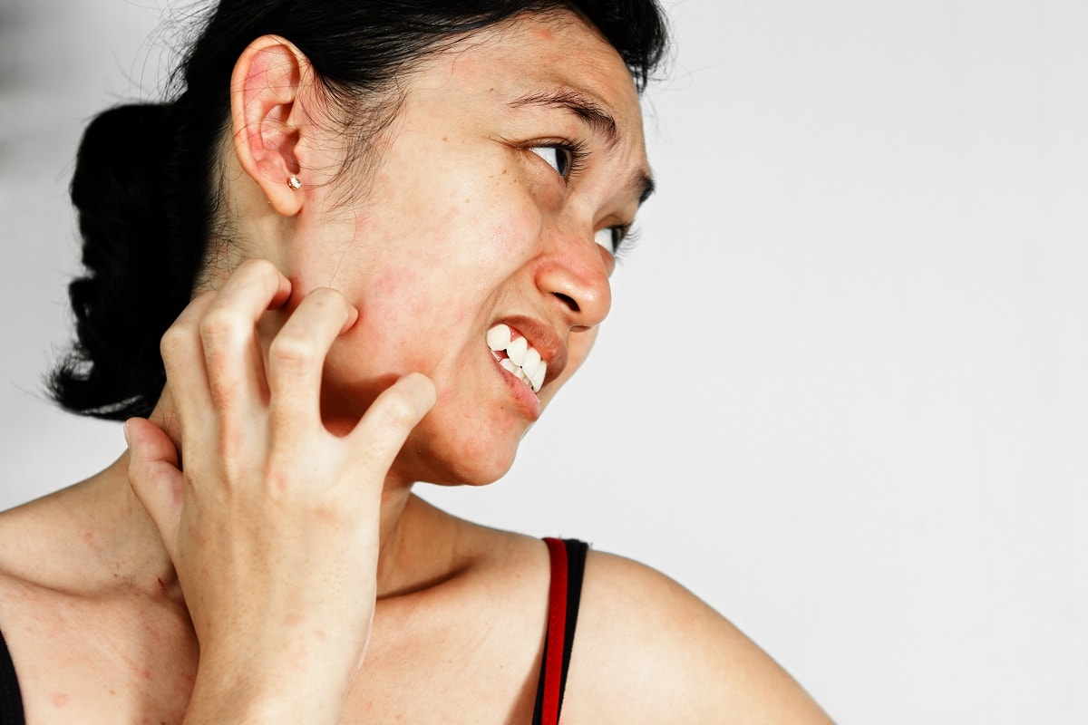 Makeup allergi
